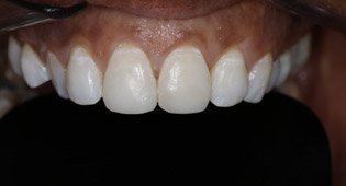 after Kensington emergency dentistry