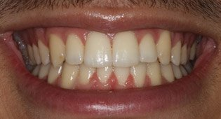 Straighten teeth with Six Month Smiles in Kensington