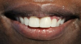 Repair tooth chips with cosmetic dental bonding in Kensington