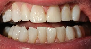 Cosmetic dental bonding in Kensington