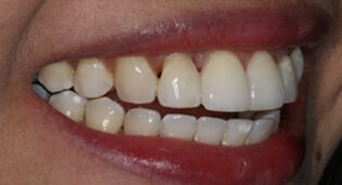 Repair chipped teeth with cosmetic dental bonding in Kensington