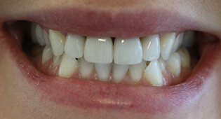Repair teeth with dental crowns and bridges in Kensington