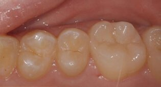 Cavity repair with tooth-coloured fillings