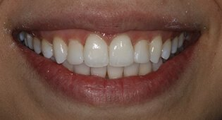 Kensington Invisalign clear braces