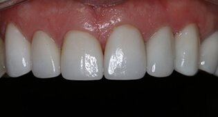 Tooth Repair with porcelain veneers in Kensington