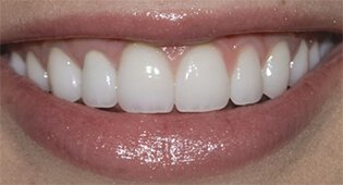 Kensington porcelain veneers for smile repair