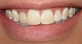yellow teeth before veneers