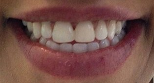Porcelain veneers in Kensington