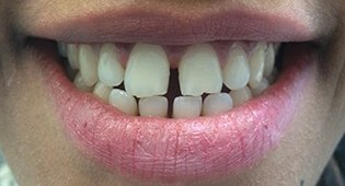 Gap before veneers