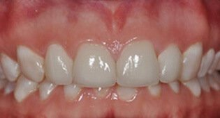 decayed teeth after veneers