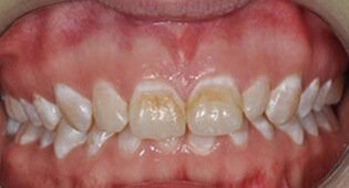 decayed teeth before veneers