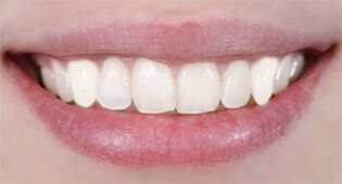 Remove tooth stains with teeth whitening in Kensington