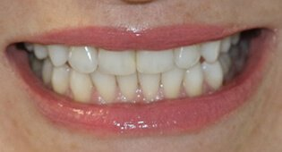 Teeth whitening in Kensington