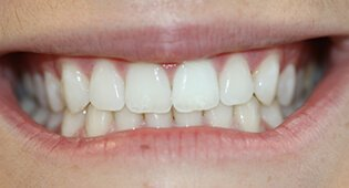 Kensington teeth whitening services